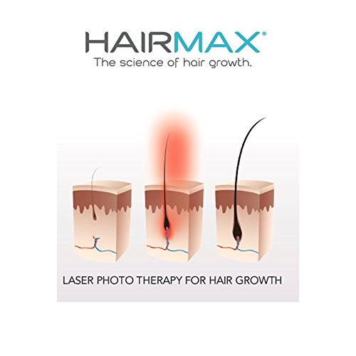 Review of Hairmax Prima 9 LaserComb​