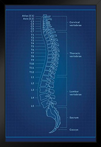 Human Spine Blueprint Educational Chart Black Wood Framed Art Poster 14x20