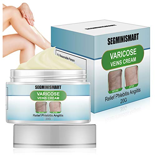 Varicose Veins Cream,Varicose Cream,Spider Veins Treatment Soothing Leg Cream Relief Blood Vein Veins Vasculitis Treatment