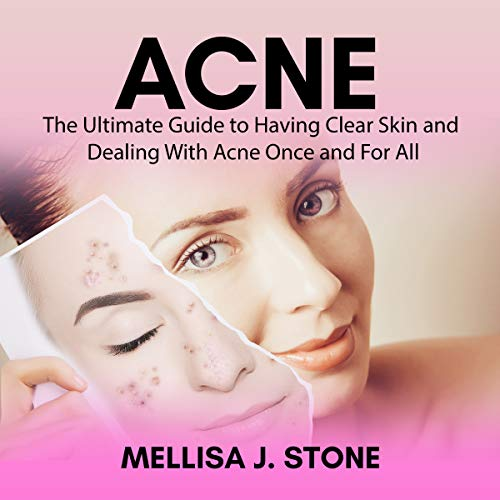 Acne: The Ultimate Guide to Having Clear Skin and Dealing with Acne Once and for All audiobook cover art