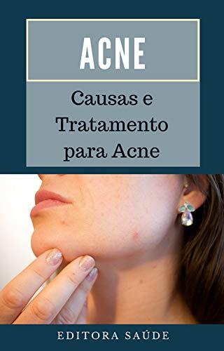 Acne: Causas e Tratamento para Acne