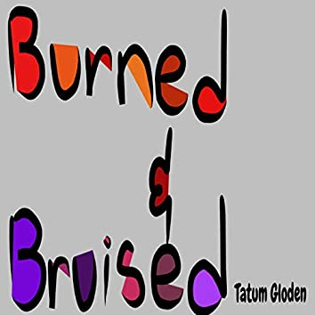 Burned and Bruised