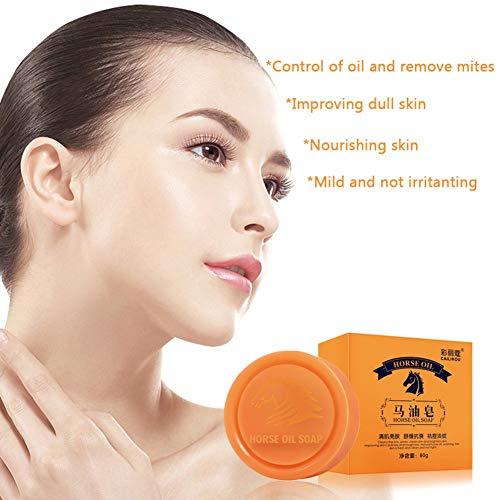 Savon de traitement de l'acné, barre de nettoyage Natural Beauty - Barre nettoyante naturelle, 80g / 2.82oz, à base d'ingrédients biologiques