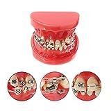 Zahnspangen Modell, Zahn Typodont mit Mental Brackets KFO Zahn Behandlung Modell mit Ligatur Krawatten Rot, mit Anti-Nagel-Lehr-Modell