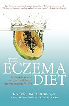 The Eczema Diet: Eczema-safe food to stop the itch and prevent eczema for life by [Karen Fischer]