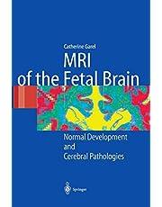 Mri of the Fetal Brain: Normal Development and Cerebral Pathologies