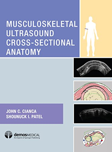 Musculoskeletal Ultrasound Cross-Sectional Anatomy (English Edition)