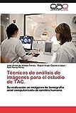 Técnicas de análisis de imágenes para el estudio de TAC.: Su evaluación en imágenes de tomografía axial computarizada de cerebro humano.