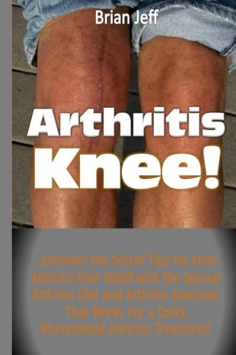 Arthritis Knee!: …Discover the Secret Tips for Knee Arthritis Pain Relief with the Special Arthritis Diet and Arthritis Exercises That Works For a Quick Rheumatoid Arthritis Treatment!