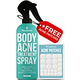 TreeActiv Body Acne Treatment Spray + Acne Patches | Salicylic Acid Pimple Mist for Chest, Arm, Shoulder, Bacne, Leg, Thigh, & Butt | Zit, Hormonal Acne, & Milia Remover for Clear, Blemish-Free Skin