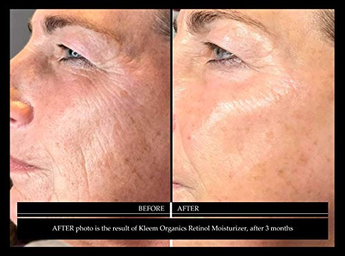 Crema humectante Retinol antienvejecimiento para la cara y el contorno de ojos con 2.5% de Retinol y ácido hialurónico. La mejor crema antiarrugas diaria y nocturna para hombres y mujeres. Resultados en 5 semanas.