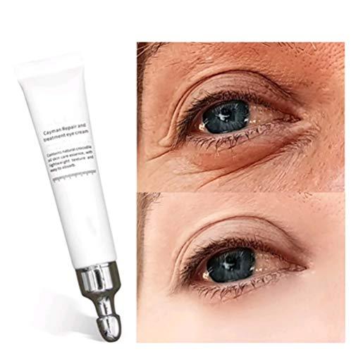 Magic Eye Cream-28 Seconds to Remove Eye Bags Dark Circles, Magic Eye Cream pour les rides, crème anti-âge pour les yeux, crème anti-rides pour les yeux (1 pcs)