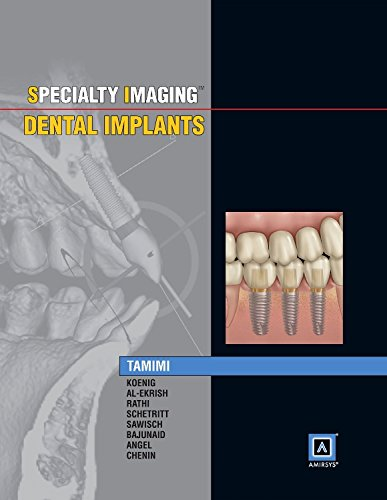 Specialty Imaging: Dental Implants