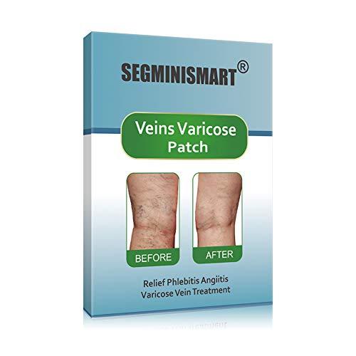 Varicose Veins Patch,Varicose Vein Treatment,Varicose Spider Vein Treatment For Legs, Relief Phlebitis Angiitis Inflammation, Blood Vein Veins Vasculitis