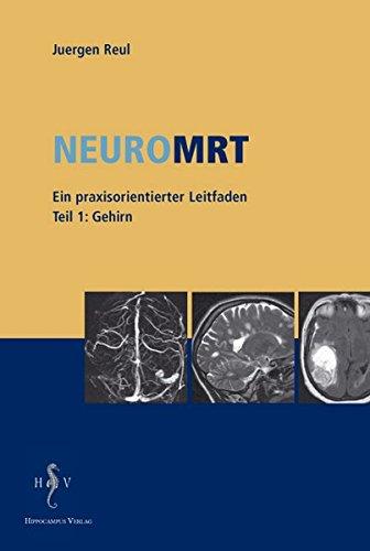 NeuroMRT 1: Gehirn. Ein praxisorientierter Leitfaden
