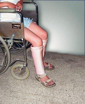 DermaSaver Leg - Shin, M, Calf Circ 12- 15 - Model 56309803 by Sammons Preston -  4332563249