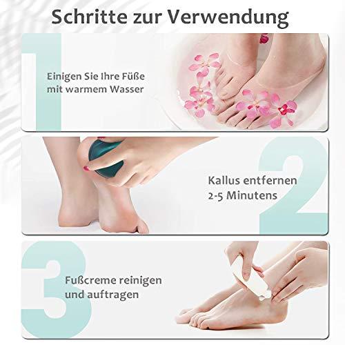 STRICT Hornhautentferner Upgrade Nano Glas Hochwirksame Hornhautraspel Fußpflege für Füsse Hornhaut Entfernung - Professionelle Fusspflege für Samtweiche Füsse(sicher & schnell)