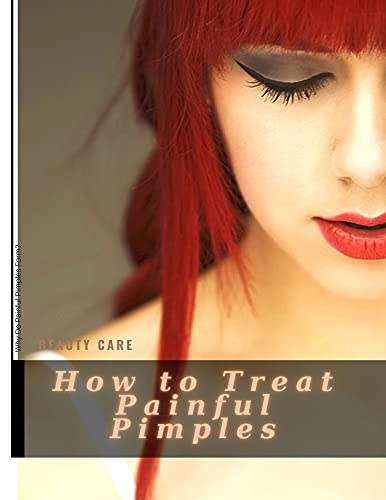 How tо Treat Painful Pimples: Why Do Painful Pimples Form? (English Edition)