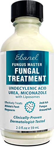 Ebanel Antifungal Treatment, 2 Oz Athletes Foot Treatment with Miconazole, Undecylenic Acid, Urea, Oregano Oil, Salicylic Acid, Kills Fungus on Skin that Leads to Nail Fungus, Ringworm Jock Itch Cream