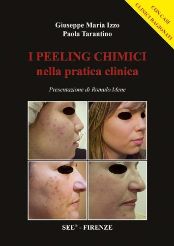 I peeling chimici nella pratica clinica