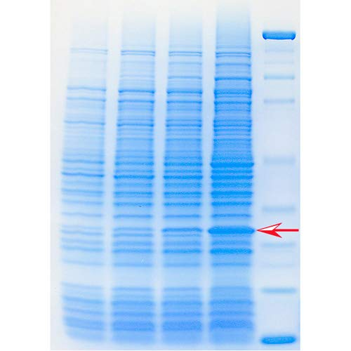 Expression of a Recombinant Protein