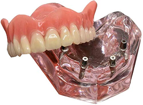 QTWW Dentalmodell Overdenture Inferior Precision Implantate Demo Abnehmbarer Innenkiefer Unterkiefer Modell Unterkiefer mit Implantat für Zahnlehrstudie