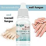 Nail Fungus Treatment Cream Kills 99.9% Bacteria and Fungus By MELLOW