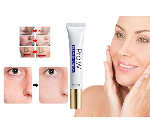 NIAN Crema Facial para hiperpigmentación y Manchas, Crema hidratante Anti-Manchas para Pieles Grasas para el Cuidado de la Piel Crema hidratante para blanquear los poros (2)