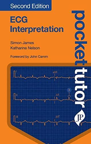 Pocket Tutor: ECG Interpretation (English Edition)
