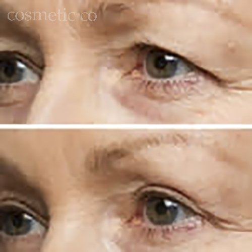 The Cosmetic Company: Eye Define - Premium Easy Instant Eye Lift in a Box - Magic Natural Eye Lift Without Surgery (64ct)