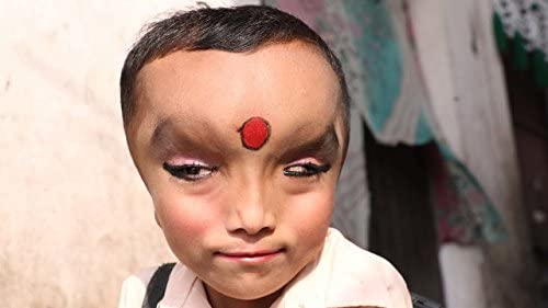 Boy With Mystery Condition Is Worshipped As A God product image