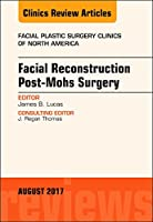 Facial Reconstruction Post-Mohs Surgery, An Issue of Facial Plastic Surgery Clinics of North America (Volume 25-3) (The Clinics: Surgery (Volume 25-3))