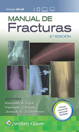 Manual de fracturas (Spanish Edition)