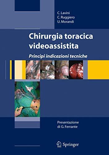 Chirurgia toracica videoassistita. Principi, indicazioni, tecniche. Con DVD