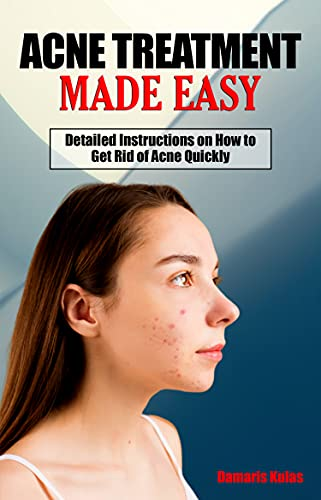 ACNE TREATMENT MADE EASY: Detailed Instructions on How to Get Rid of Acne Quickly - A Simple Step-By-Step Guide to Treating Acne - Address Acne from the Root Causes (English Edition)
