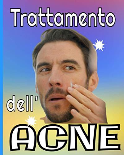 Trattamento dell'acne: Gestisci la tua Acne giorno dopo giorno con questo notebook appositamente progettato / Monitoraggio dei sintomi / Dieta / Trattamenti ecc...