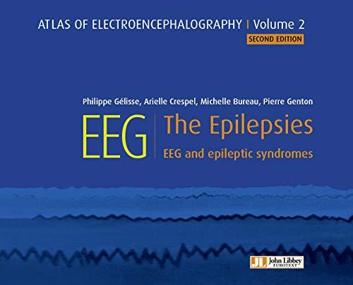 EEG : The Epilepsies: EEG and epileptic syndromes (Atlas EEG Book 2) (English Edition)