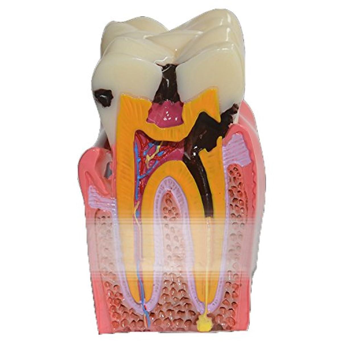 圧縮された汚れる哲学者GoDen大人と小児歯模型 解剖学的歯模型 教学用模型