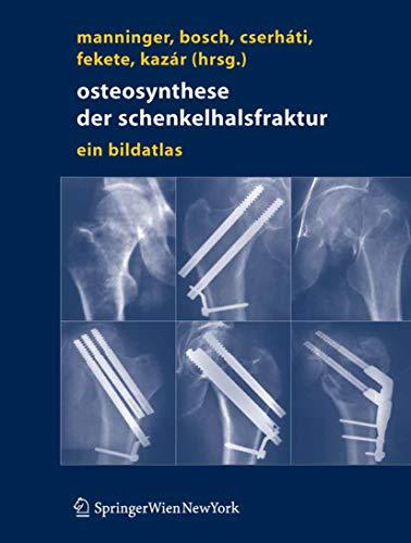 Osteosynthese der Schenkelhalsfraktur: Ein Bildatlas (German Edition)