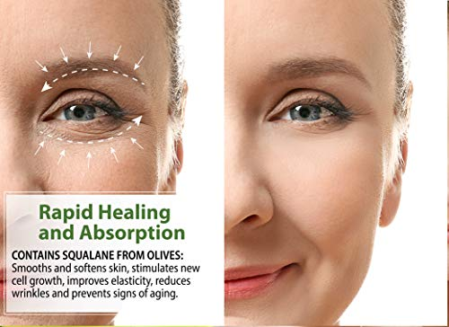41Zc8uM2iVL - LuxeOrganix Organic Eye Cream Dark Circles Anti-Aging Moisturizer With Natural Retinol Alternative & Matrixyl. Brightening Treatment Reduces Puffiness, Under Eye Bags, Wrinkles & Fine Lines, 1 oz Pump