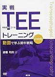 実戦TEE(経食道心エコー法)トレーニング: 動画で学ぶ術中戦略(DVD付)