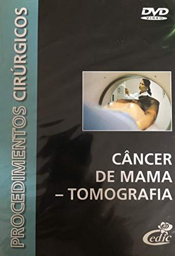 DVD Procedimentos Cirúrgicos - Câncer de Mama - Tomografia