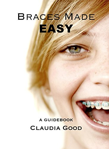 Braces Made Easy: A Guidebook