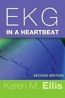 EKG in a Heartbeat