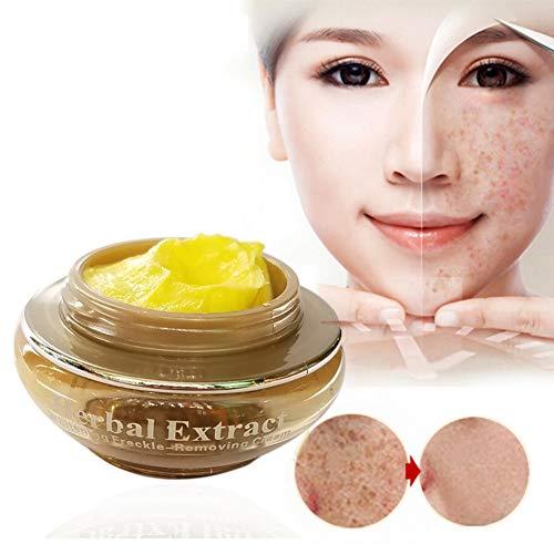 Crème éclaircissante pour la peau, Crème éclaircissante, Crème Blanchiment rapide, Crème de traitement Melasma, Crème anti-taches de rousseur pour éclaircir le visage, tache sombre