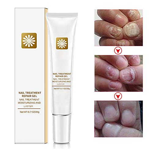 Nail Repair Cream, zeBrush Natural Fungus Nail Treatment Fingernail and Toenail Repair Cream to Remove Onychomycosis and Restore Appearance of Healthy Toenail Fingernail with High Efficiency
