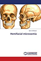 Hemifacial microsomia