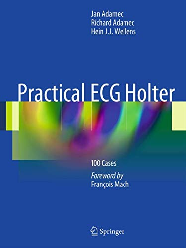 Practical ECG Holter: 100 Cases