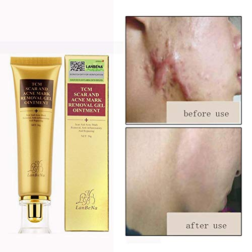 Acne Scar Remover Cream,Stretch Mark Cream for Pregnancy, Skin Repair Cream,Scar Removal Cream, Scar Removal for Deep Scars, Hot Scar Repair Cream, Best Gift for Pregnant Women (1pcs) Facaily