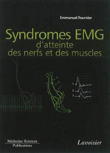 Syndromes EMG d'atteinte des nerfs et des muscles